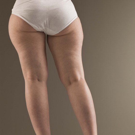 Dents, bubbles and dimples on your hips can be caused by cellulite.