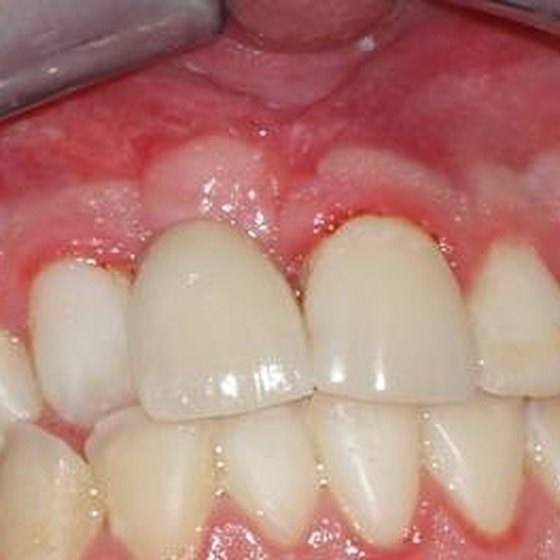 Failed implants will cause gums to appear red and may not heal.