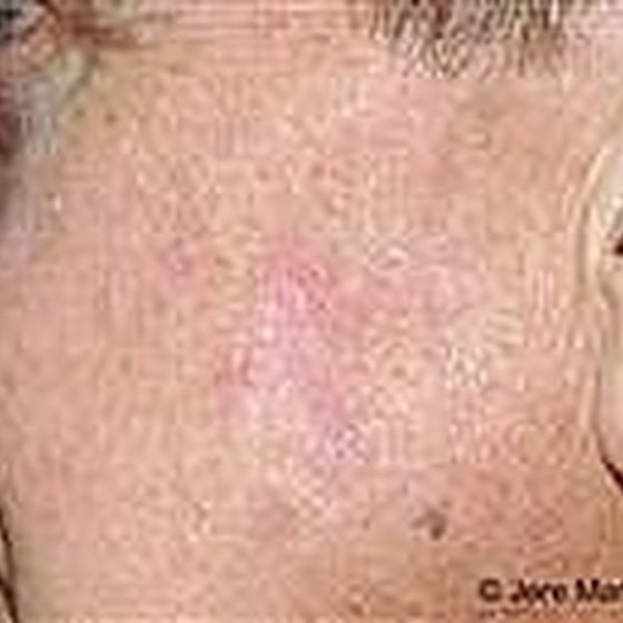 Osteopathic College of Dermatology photo of actinic keratosis
