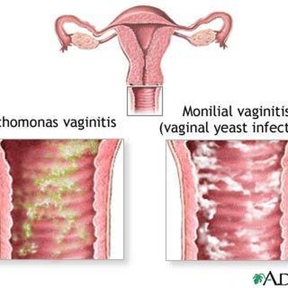 Relief for Vaginal Irritation Itching and Swelling Healthy Living