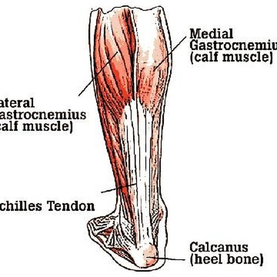 Symptoms of a Torn Achilles Tendon