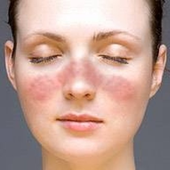 What Are the Causes of Face Rash?