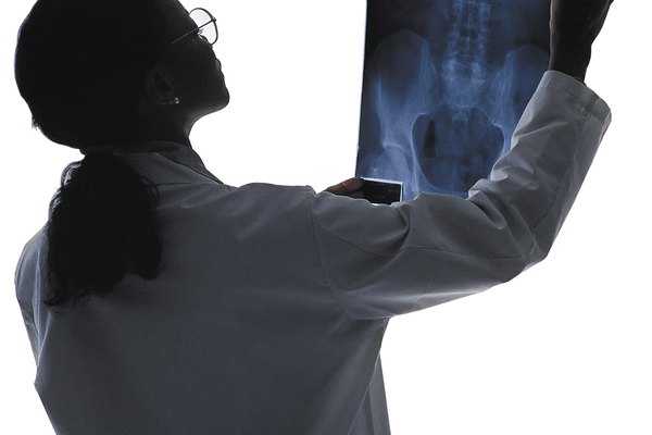 Woman doctor reading x-ray