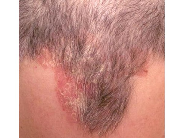Scalp acne is caused by the build-up of dirt and bacteria under the hair