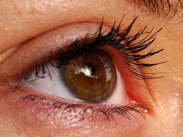 Inflammation can cause watering of the eyes and blurred vision.