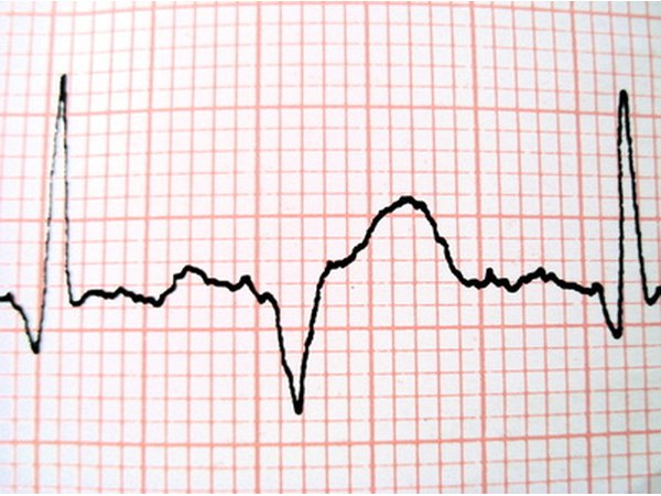 EKG tests provide additional data about heart functions.