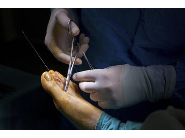 Patients have a success rate for plantar fascia surgery as high as 70 to 90 percent.