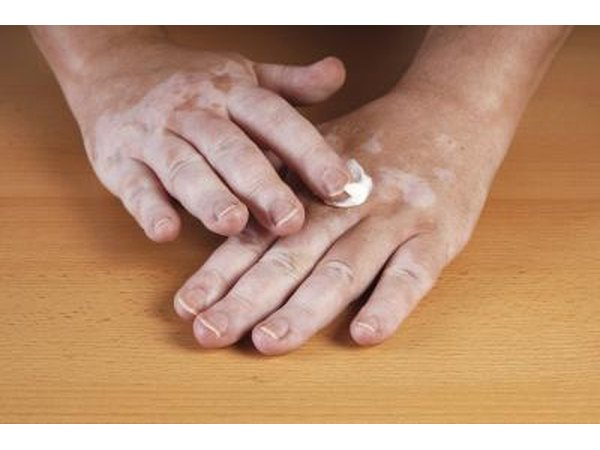Πόνος στις αρθρώσεις και κόπωση