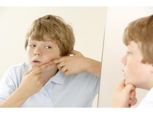 Tween boy touching pimple on face