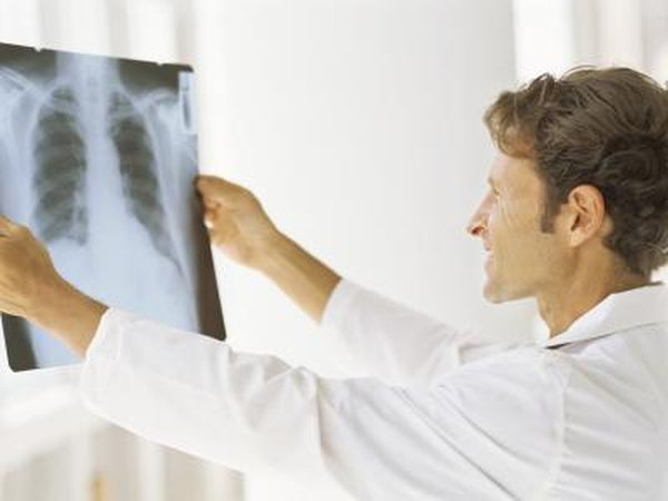 Doctor looking at an xray of the chest