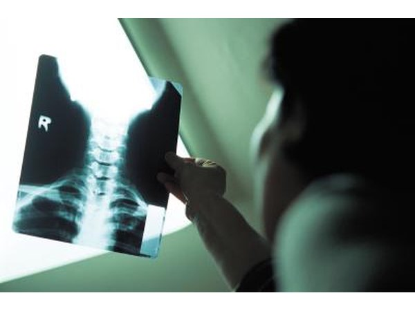 doctor looking at xray of thyroids