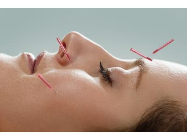 Acupuncture is gaining popularity in relieving back pain.
