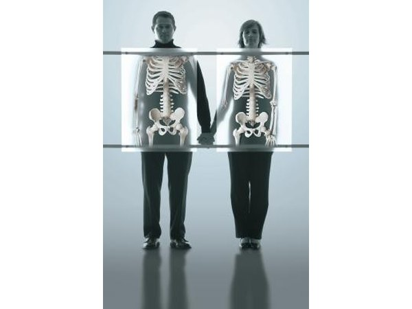 Osteoporosis is a condition in which the bones become brittle and prone to fracture