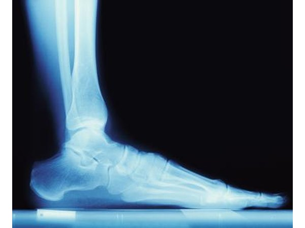 X-ray of foot.