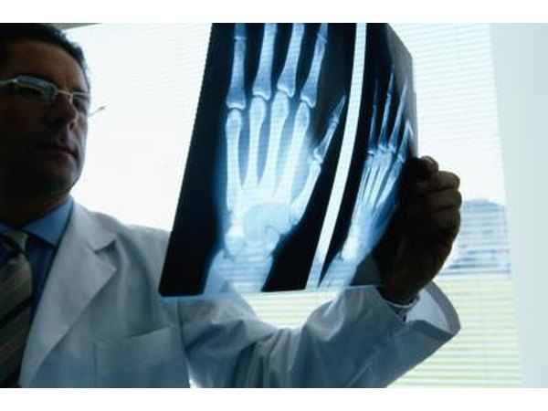 Doctor looking at hand xray
