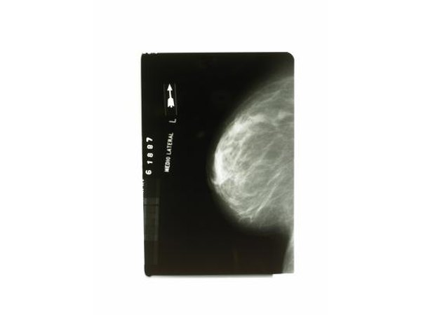 Xray of breast