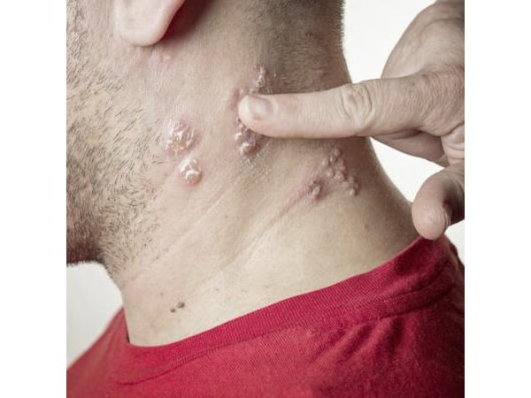 Shingles is a rash due to the virus that causes chickenpox
