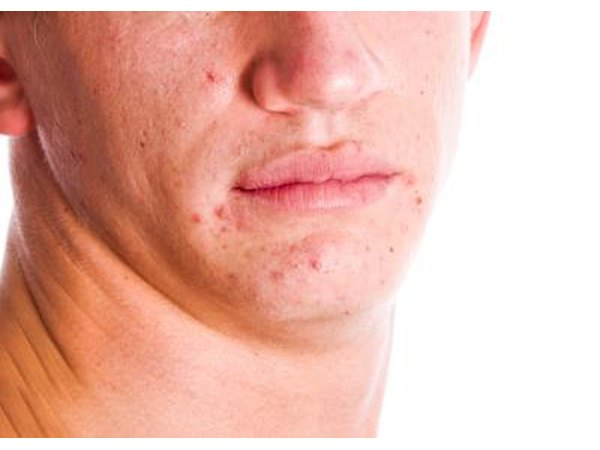 Acne is a short-term effect.