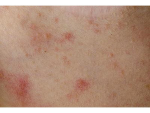 how to stop itchy skin from mosquito bites