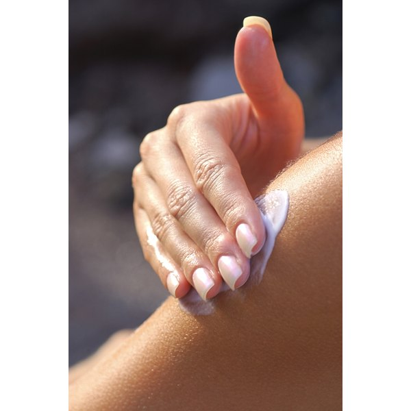 Topical acne creams can get rid of small whiteheads on the arm.