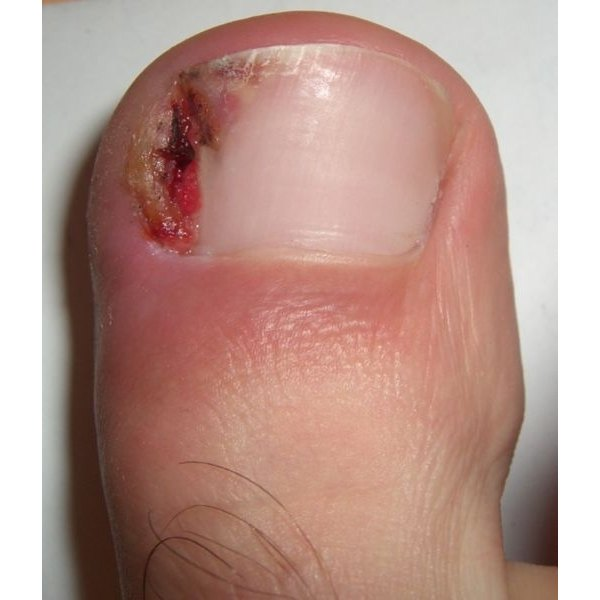 How to Treat Ingrown Toenails With Home Remedies | Healthfully