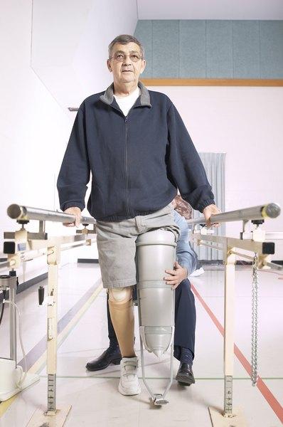 master u0026 39 s degree programs for prosthetics  u0026 orthotics