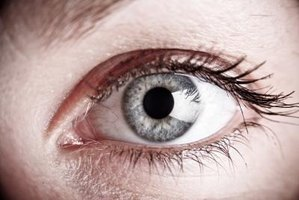 What Causes Cholesterol Deposits Around the Eyes?