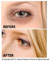 Tips for removing dark circles