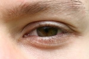 Eyes can become irritated, red or itchy for a number of reasons.