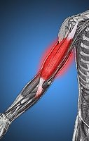 What Are the Causes of Muscle Fatigue?