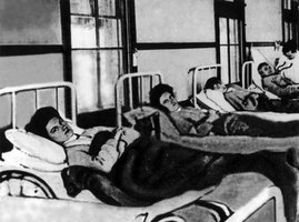 Is Typhoid Contagious?