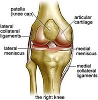 What Is a Total Knee Replacement?