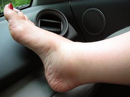 Edema is most typically a swelling in the feet.