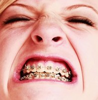 Invisalign braces cost more than traditional braces, but have the benefit of being hard to detect