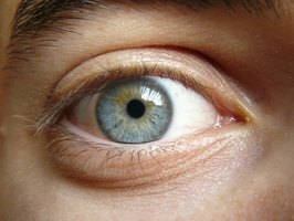 Hypothyroidism may affect the muscles of the eye and the surrounding tissue.
