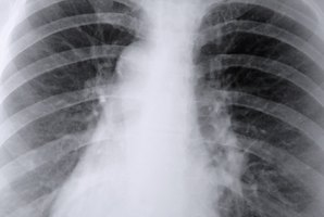 A physician uses a chest X-ray to identify areas of consolidation.