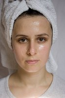 A number of home remedies can alleviate problematic acne.