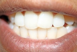 Whiten your teeth with herbal home remedies!