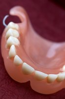 Sleeping with dentures can be uncomfortable for the first few weeks.