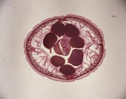 This microscopic cross-section of a nematode shows the central cavity running the length of the body.