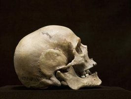 Forensic anthropologists work primarily with hard remains, namely bones and teeth.