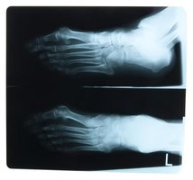 Contractures cause a restriction in movement of the joints.