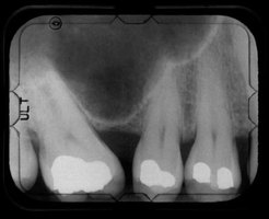This is an X-ray of someone with tooth decay.