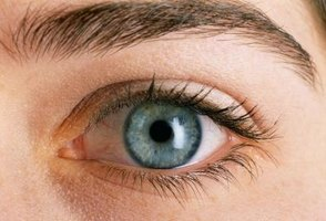 Signs & Symptoms of Shingles in The Eye
