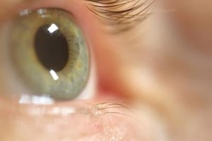 Polymers are the biomaterials used in contact lenses.