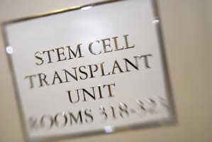 What Are the Side Effects of Stem Cell Transplantation?