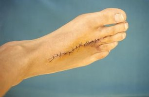 How to Desensitize Surgery Scars