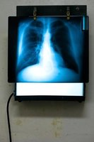 Radiologists interpret medical images such as X-rays.