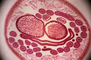 "Nematodes, shown here in cross-section, have a simple body form, often referred to as a ""tube within a tube."""