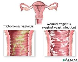 Relief for Vaginal Irritation Itching and Swelling | eHow